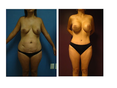 Ejemplo combinacion abdominoplastia lipectomia con implantes de senos en Salutaris Guadalajara Mexico