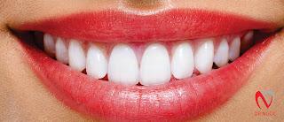 Bọc răng sứ quận 10 vơi nha khoa uy tín quận 10 Dr Ngọc q10