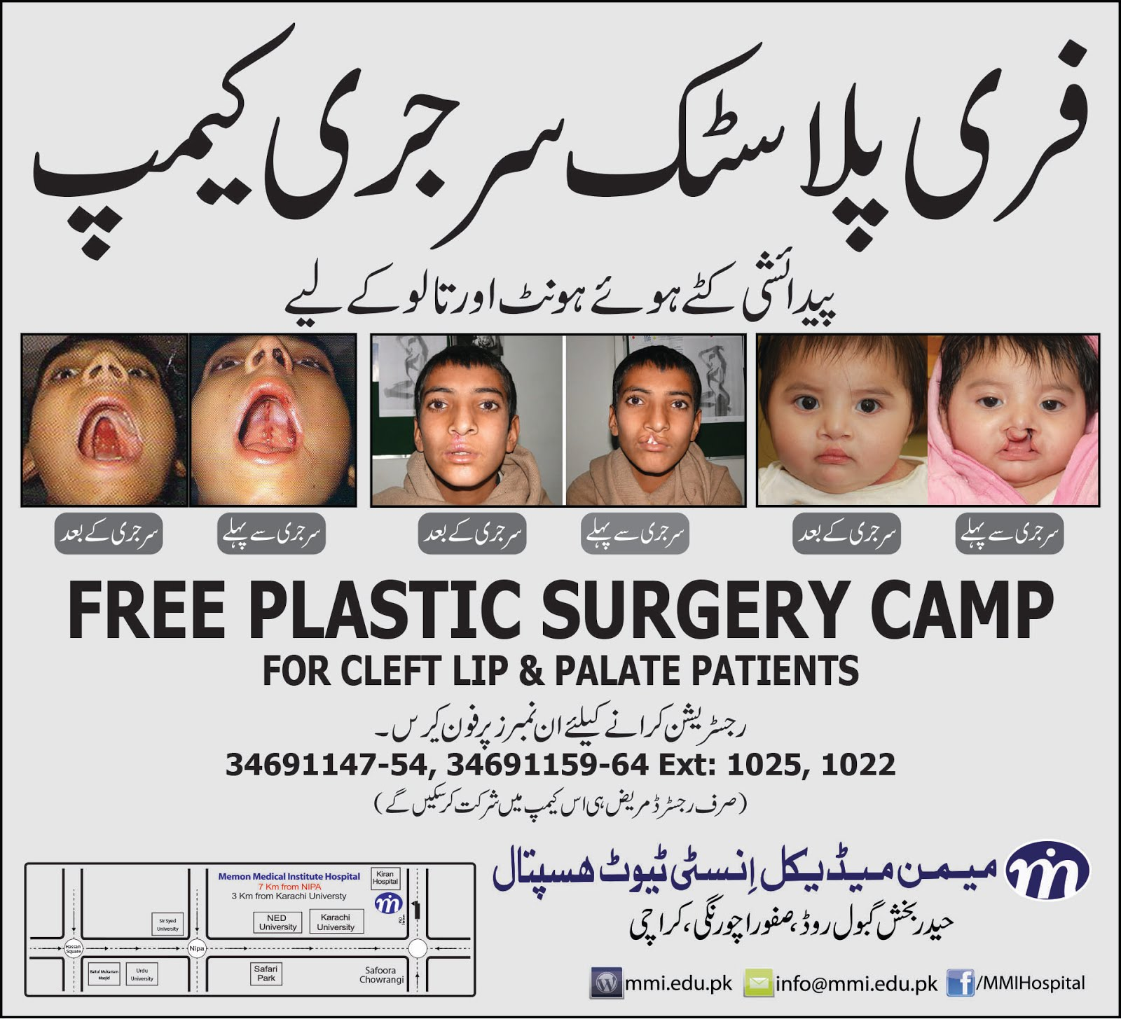 YAISHWARYAJ: {Awareness} Free Plastic Surgery Camp at MMI