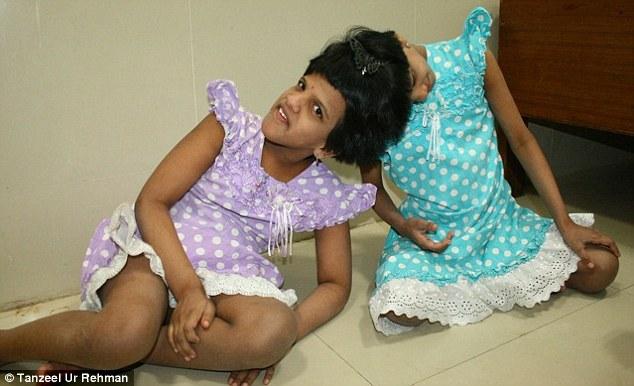 Kisah Pilu, Kembar Siam yang `Dibuang` Oleh Orang Tua Kandungnya