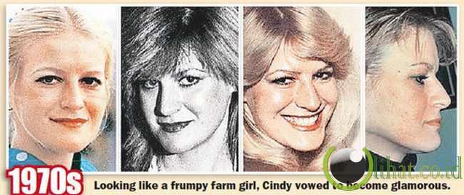 Cindy Jackson - Hasil Operasi Plastik tahun 1970 an