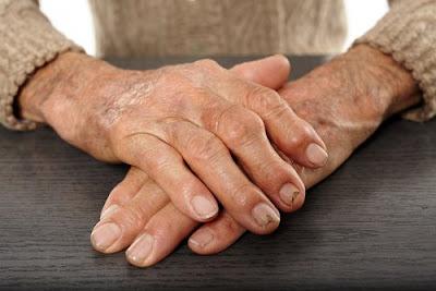 médicaments anti-inflammatoires