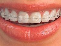 Obat Sakit Gigi Paling Ampuh dengan Bawang Putih