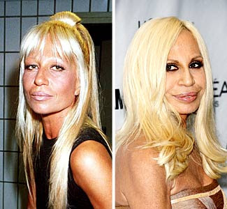 Pix N Pix Celebrity Plastic Surgery