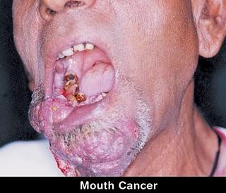 Oral V 105