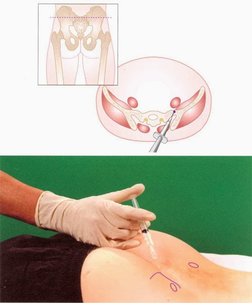 Joint Technique Injection Sacrococcygeal