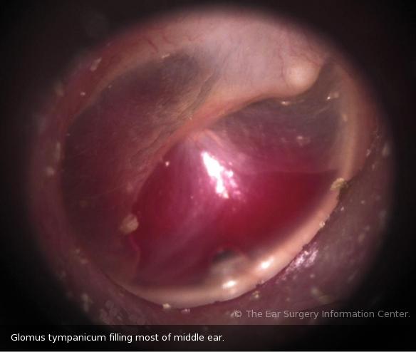 ورم-حميد-الأذن-الوسطى