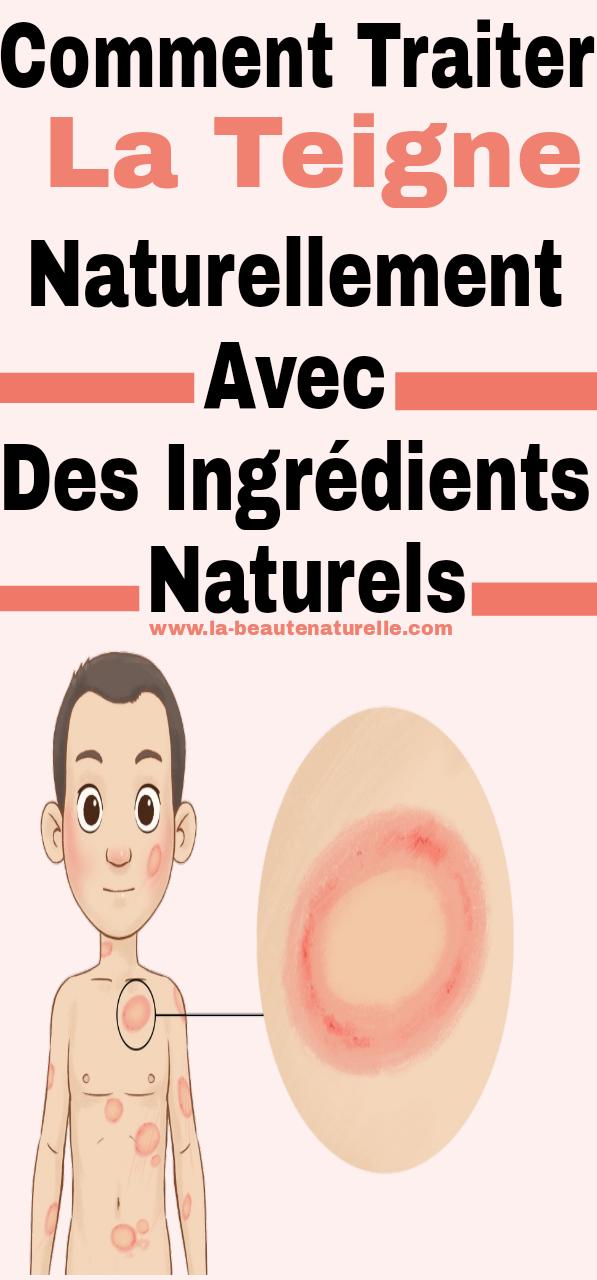 Comment traiter la teigne naturellement avec des ingrédients naturels
