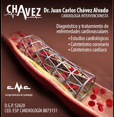 Cardiólogo en Guadalajara Dr. Juan Carlos Chavez Alvado