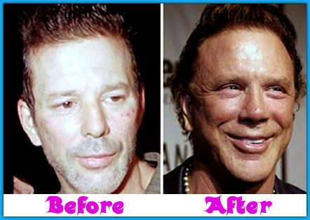 Mickey Rourke Face Plastic Surgery Gone Wrong Before and ...