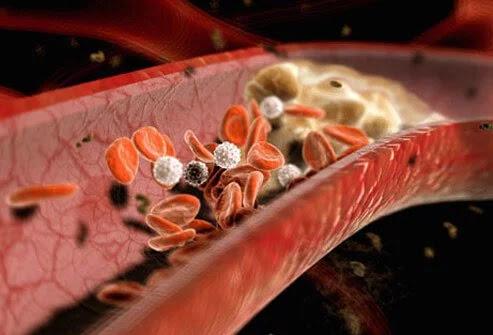 plak di pembuluh darah