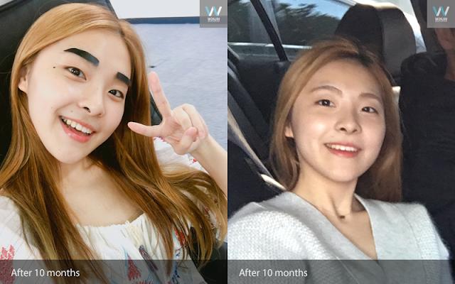 짱이뻐! - A Year Has Passed After My Korea Two Jaw Surgery