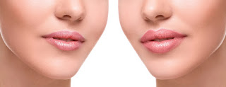 La terapia regeneradora de labios