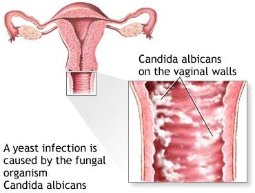 How Is Bacterial Vaginosis Diagnosed