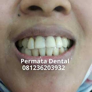 gambar foto gigi berlubang keropos karies dan rusak yang diperbaiki dengan menggunakan veneer