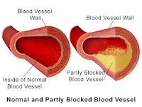 difference between healthy and clogged blood vessels