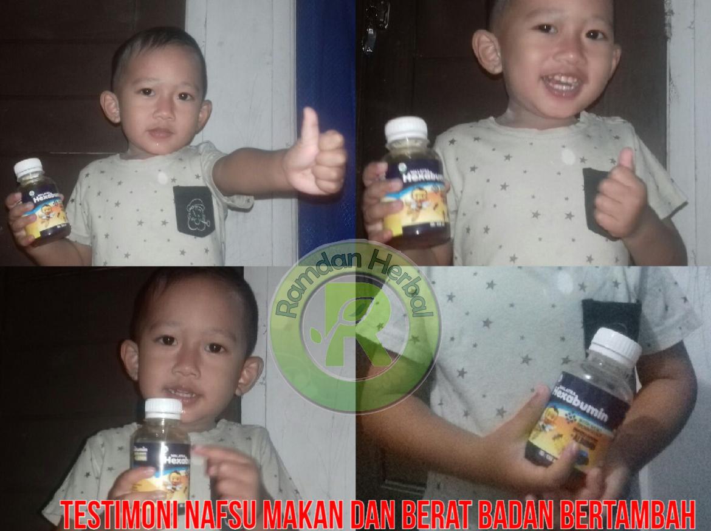 Obat Untuk Anak Peningkat Nafsu Makan