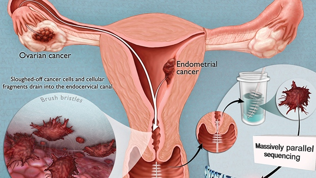 Endometrial Cancer Symptoms to Know