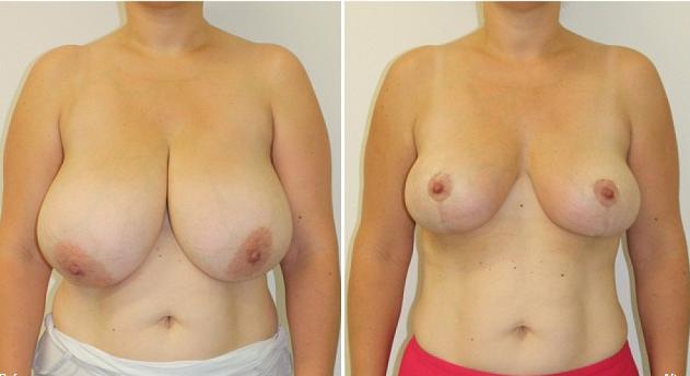 Cirurgia Plstica - Mamoplastia