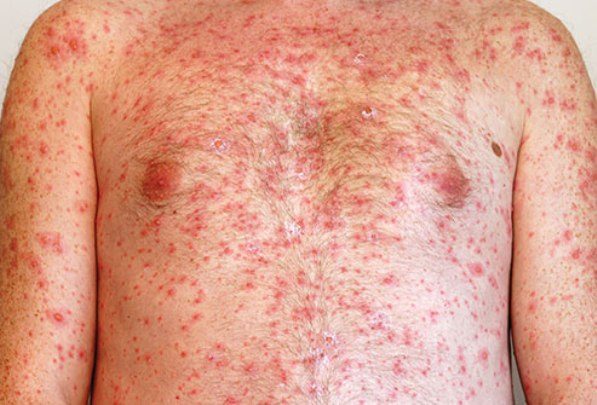 Chicken Pox Rash on a Man's Chest