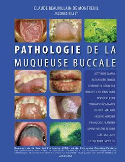Pathologie De La Muqueuse Buccale 33020272_1942485035776052_9103376539004698624_n