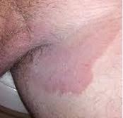 Obat manjur Gatal-gatal selangkangan Karena Penyakit Kulit