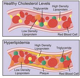 pembuluh darah, arteri, vena, LDL, HDL, kolesterol, kegemukan, gendut, gemuk, VLDL, kilomikron, sel darah merah, lemak, lipid, lumen, mukosa, trigliserida