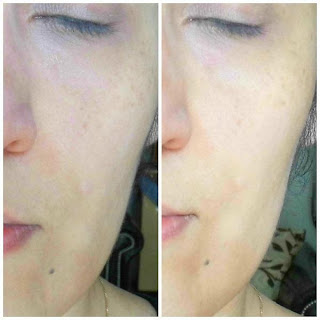 PMD Personal Microderm at Home - Review Vorher/nachher before/after