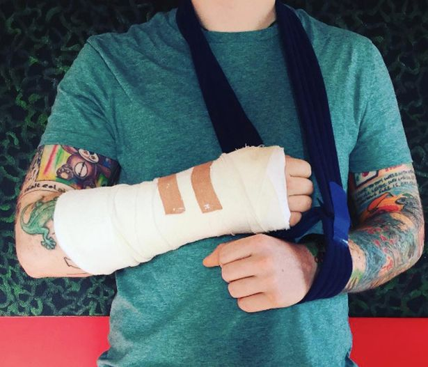 Ed shared the first picture of his broken arm
