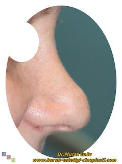 Gaga Burun Deformitesi Nedir? - Pollybeak Deformitesi Nedir? - Polly Beak Deformity - Revizyon Burun Estetiği - Gaga Burun Deformitesi Nedenleri - Gaga Burun Deformitesi Nasıl Tedavi Edilir?