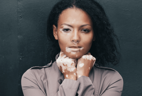 Vitiligo: entenda a doença que provoca a despigmentação da pele