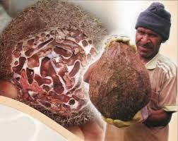 Sarang Semut Ampuh Atasi Kanker Uterus