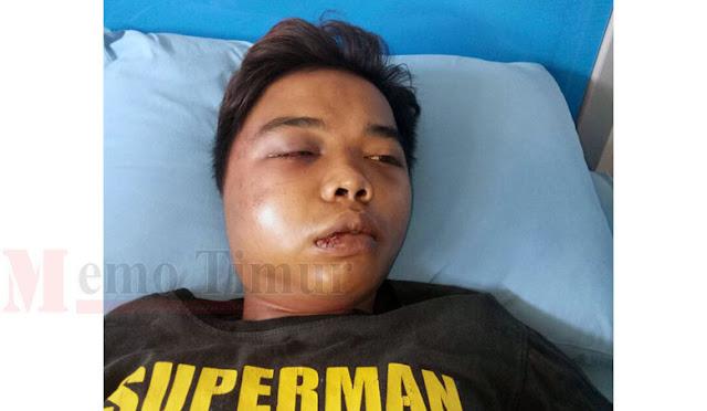 Kondisi korban saat dirawat di RSUD Pasirian dan foto kedua pelaku