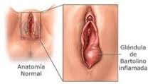 Obat Luka Pada Vagina