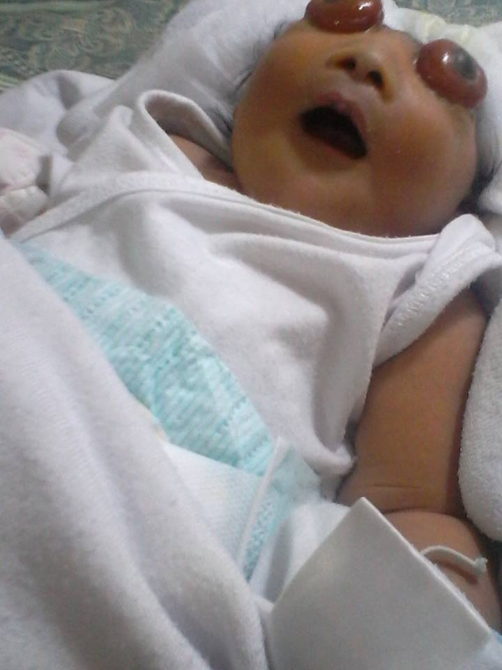 Netizens' Heart Breaks For Poor Batangas Baby Suffering From Anencephaly