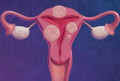 Ảnh hưởng của u xơ cổ tử cung đến cơ thể
