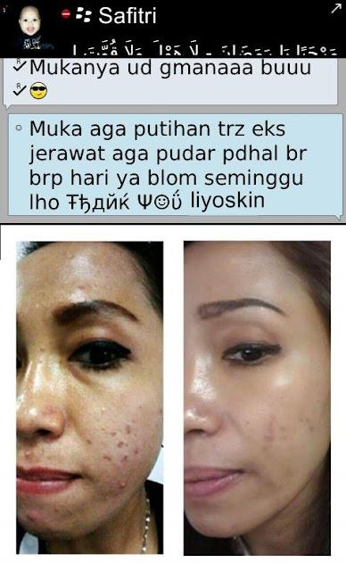 Kumpulan Testimoni Terbaru Pengguna Cream Liyoskin