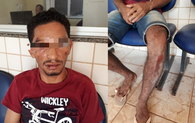 Revoltante: Bandidos assaltam residência e espancam morador em Itaituba