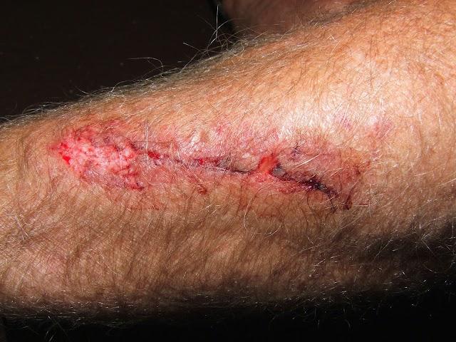 Empaquetado de heridas