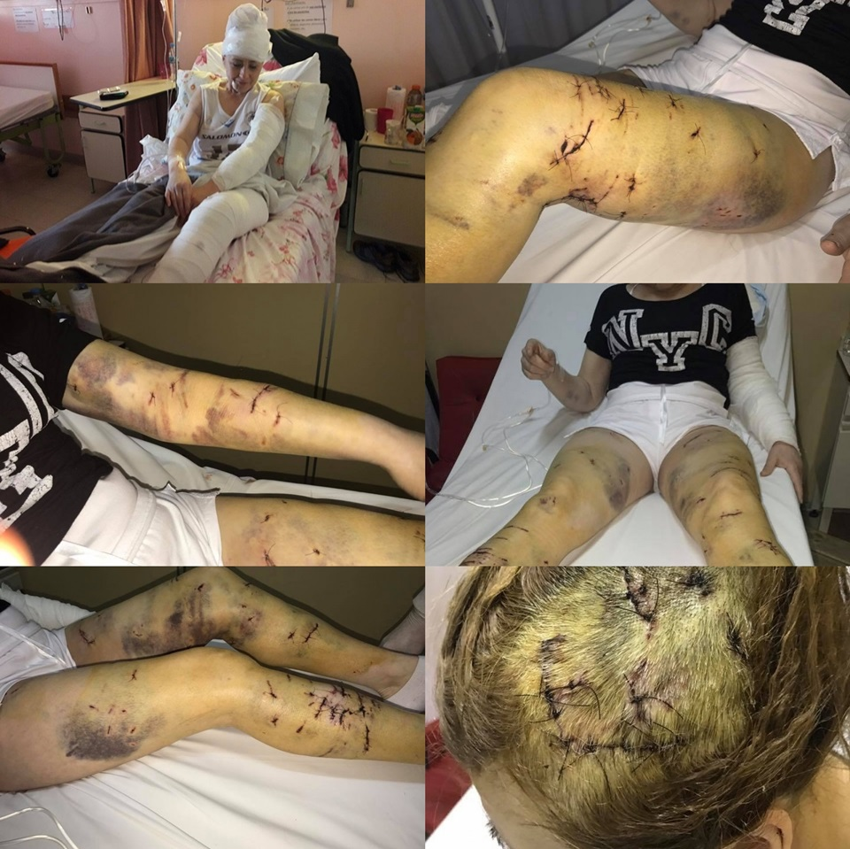 Mujer atacada por perros en Ushuaia asi quedo
