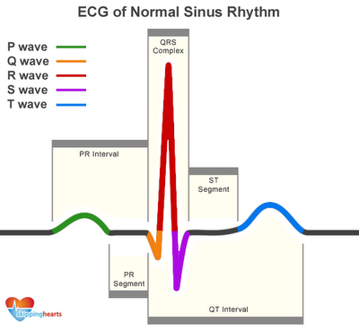 LuNaR Baca EKG Elektrokardiograf aka Rekam jantung