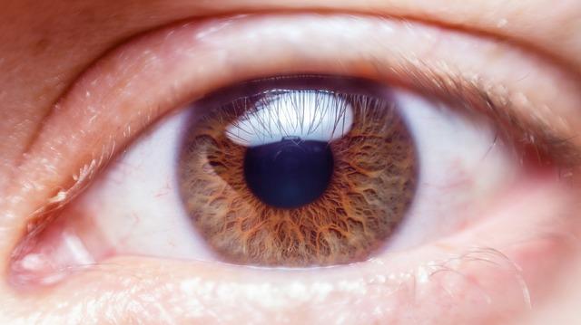 Cara Mengatasi Mata Merah Karena Lama Bermain Gadget