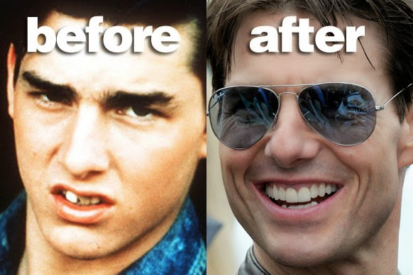 CELEBS AND THEIR TEETH: BEFORE AND AFTER FIXING | 582 x 388 jpeg 46kB