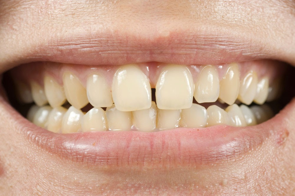 REMEDIES FOR TOOTH DISCOLORATION - TZ Health