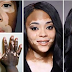THE WHOLE WORLD CELEBRATES: CUBAN DOCTORS ACHIEVE CURE FOR VITILIGO