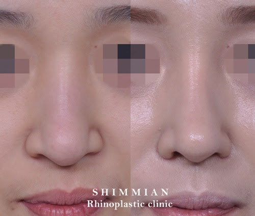 Rhinoplasty | Nose surgery
