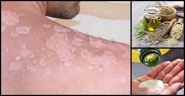 4 Natural Remedies That Can Help People With Skin Cancer
