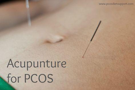 Akupunktur untuk promil PCOs