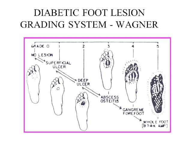 Wagner 's Diabetic Foot Grading System