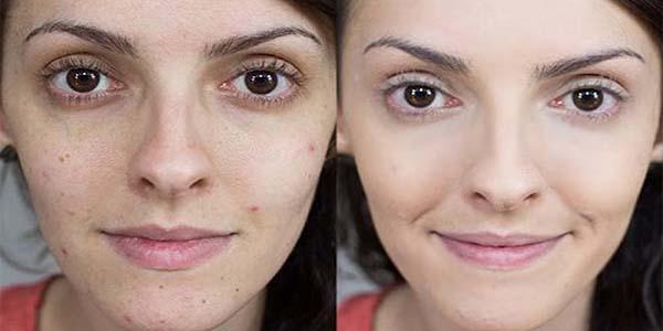 Cómo quitar las espinillas de la cara 100% eficaz, ver estos 5 pasos
